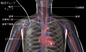 中心静脈栄養とは、鎖骨下静脈などから心臓に最も近い大静脈までカテーテルを入れて輸液ラインを確保し、このラインを通して栄養補給する方法。