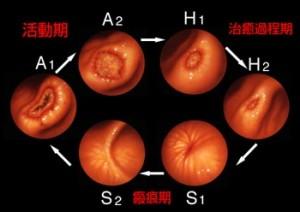 胃潰瘍のサイクル。