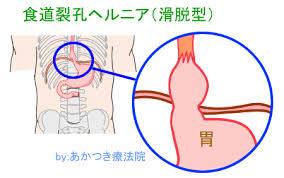 胃の一部が横隔膜の上に来てしまっています。