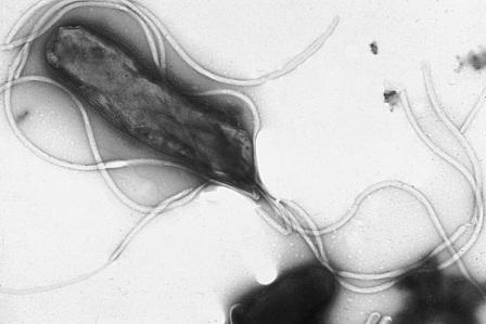 ヘリコバクター・ピロリ菌(Wikipediaより)